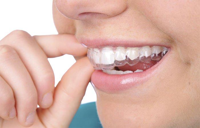Niềng răng trong suốt giúp, chỉnh sửa răng, sử dụng một loạt khay trong suốt, dễ dàng tháo lắp tùy lúc